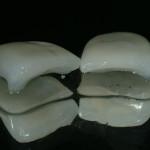 Fase 1:progettazione con tecnologia Cad Cam delle faccette