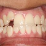 Prima del trattamento ortodontico